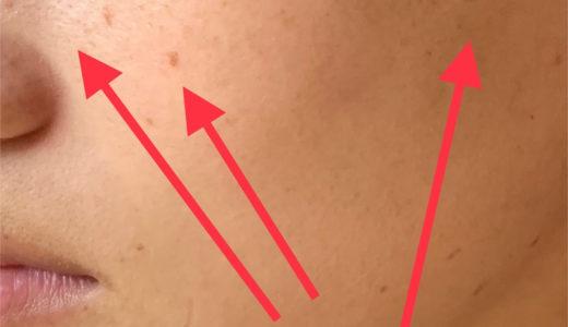 シミとり2回後です。肌色も明るくなりました。